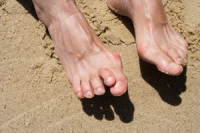 Can Hammertoe Be Cured?