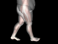 Foot Pain May Come From Being Overweight