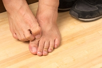 Does Athlete's Foot Cause Noticeable Symptoms?